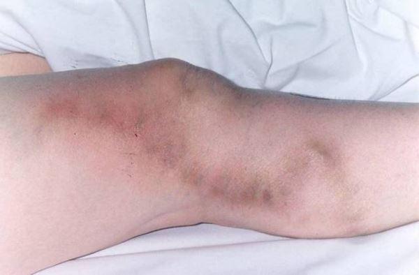 Тромбофлебит латеральной вены бедра и голени