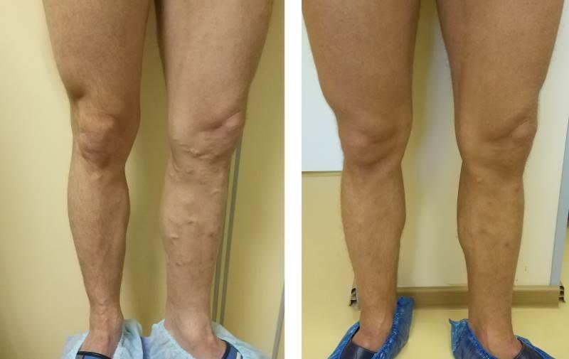 ЭВЛК большой и передней добавочной подкожной вены (через 1,5 мес)