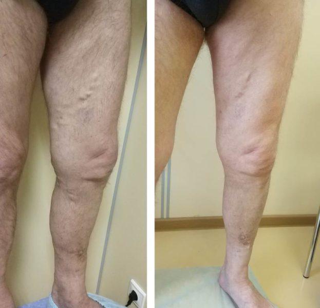 Склерозирование под контролем УЗИ при рецидиве варикоза (через 3 нед)