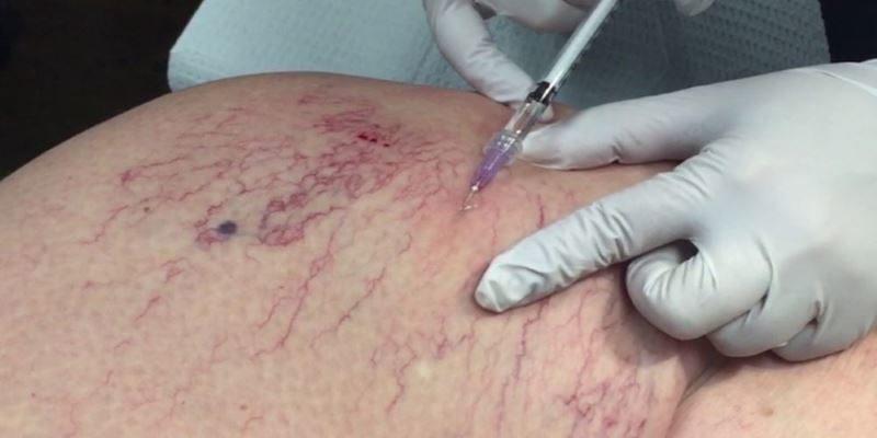 Склерозирование сосудистой сетки раствором