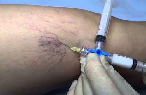 Введение склерозанта в виде пены в сосудистую сетку