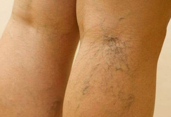 Способы лечения варикоза на ногах