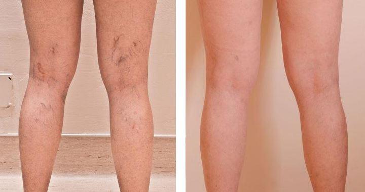 Склеротерапия по задней поверхности бедра и голени с двух сторон (через 4 месяца)