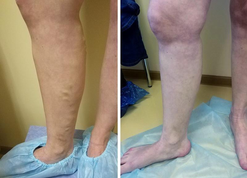 ЭВЛК большой подкожной вены (через 2 месяца)