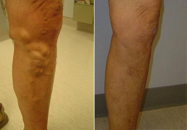 Результат минифлебэктомии через 3 месяца