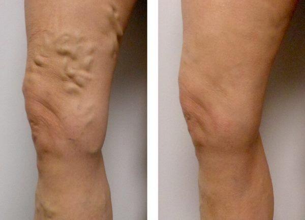 До и после склерозирования вен под УЗИ