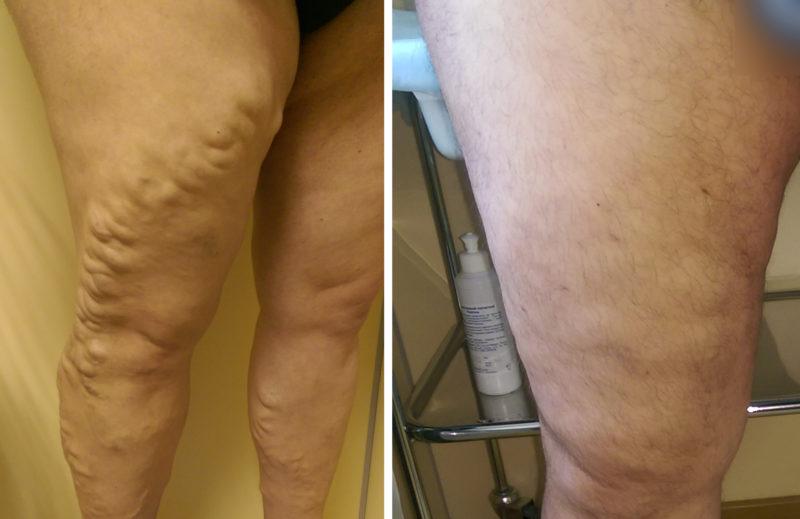 Через 1 месяц после минифлебэктомии